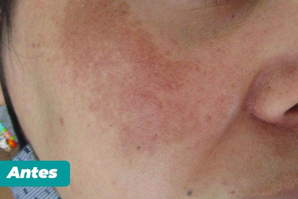 tratamiento-estetico-cosmelan-1-dra-luz-helena-pabon