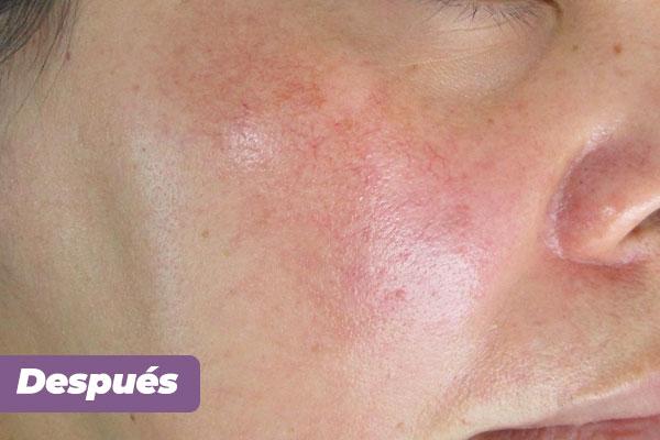 tratamiento-estetico-cosmelan-2-dra-luz-helena-pabon